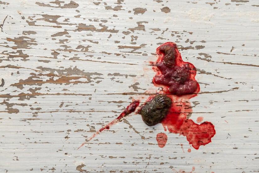 Hund Hat Blut Im Stuhl Grunde Und Losung Modern Dogs De