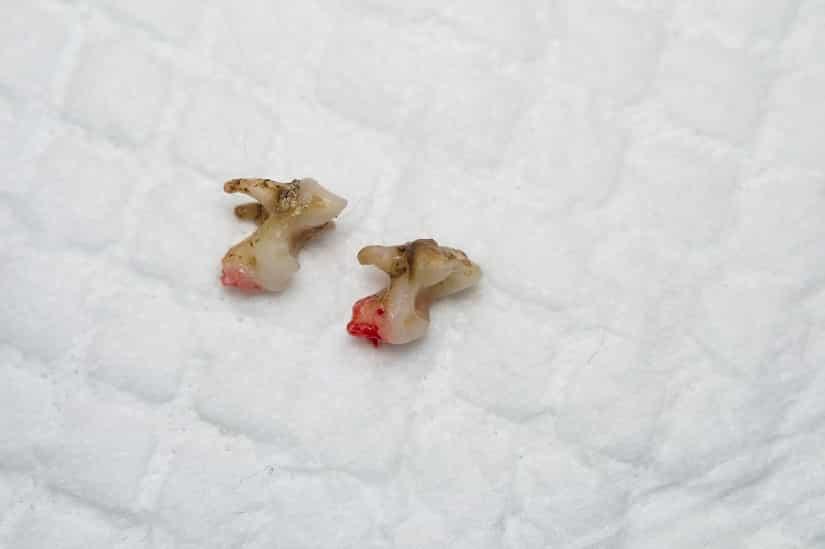 Hunde-Zahnstein kann zum Verlust von Zähnen führen